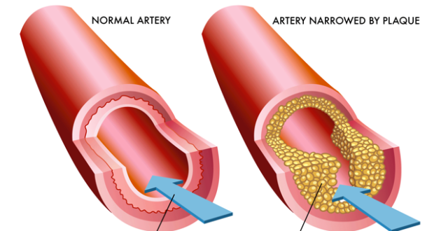 Altherosclerosis