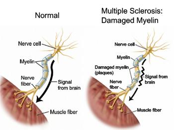 multiple-sclerosis-image
